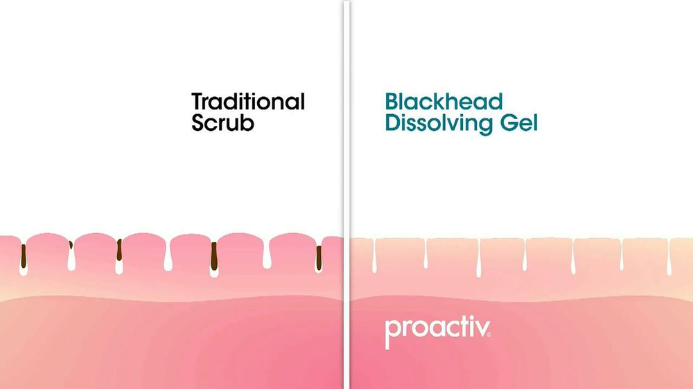Proactiv Blackhead Dissolving Gel TV Spot - Screenshot 5