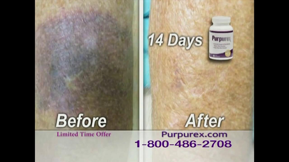Purpurex TV Spot Featuring Florence Henderson - 1 commercial airings