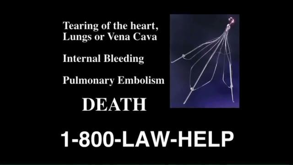 Pulaski Law Firm >> The Cochran Law Firm TV Commercial, 'Blood Clot Filter Implant' - iSpot.tv